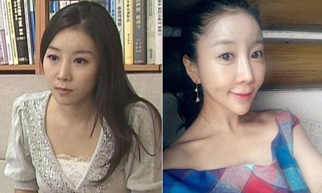 korean-woman-heart-shaped-face-surgery-1