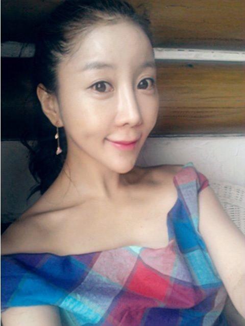 korean-woman-heart-shaped-face-surgery-5