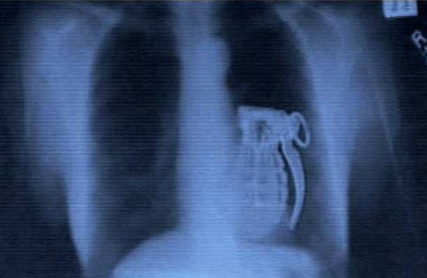 Grenade In Stomach X-Ray